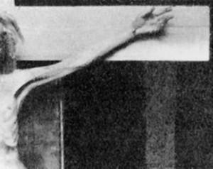 Allegato 6 - Vita 6, Figura 6 [1932 - Pierre Barbet, esperimento sulla tenuta di un uomo crocifisso]