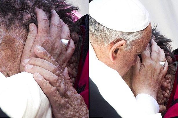 Il Giubileo dei malati riserverà una sorpresa di Papa Francesco?