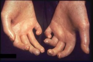 Sclerosi sistemtica